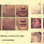 NOUVEAUTÉ 2020 Le microneedling