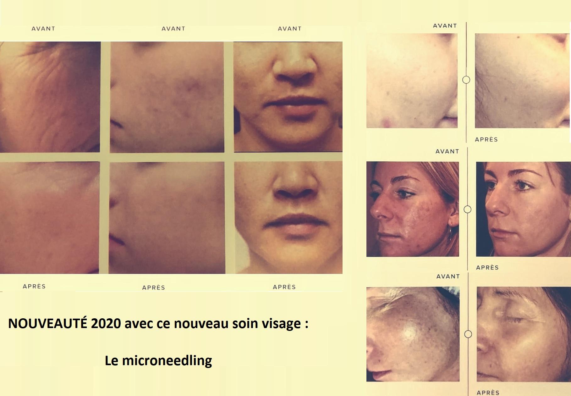 NOUVEAUTÉ 2020 Le microneedling Cette méthode indolore consiste à créer des micro-perforations invisibles à l'œil nu grâce à des micro-aiguilles en titane (non allergène).