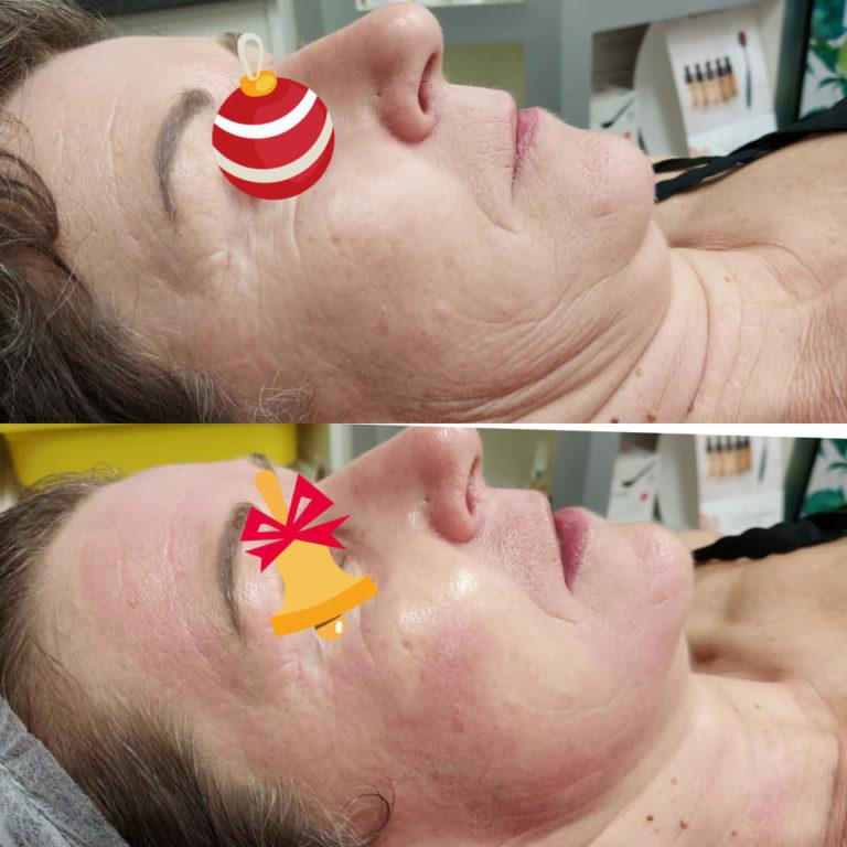 Séance de microneedling Résultats immédiats 🥰🥰🥰 Grain de peau affiné, éclat, réduction des rides, peau plus ferme...